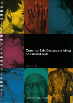 Common Skin Diseases in Africa 3rd revised edition 2014 ...